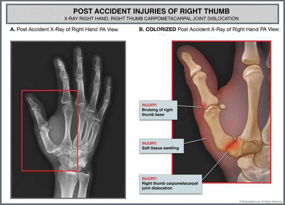 Graphic showing injury to thumb
