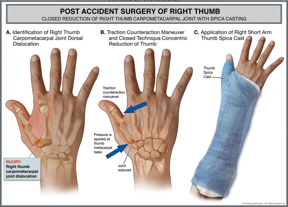 Graphic showing surgery to thumb