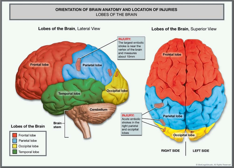 Graphic showing injury to brain