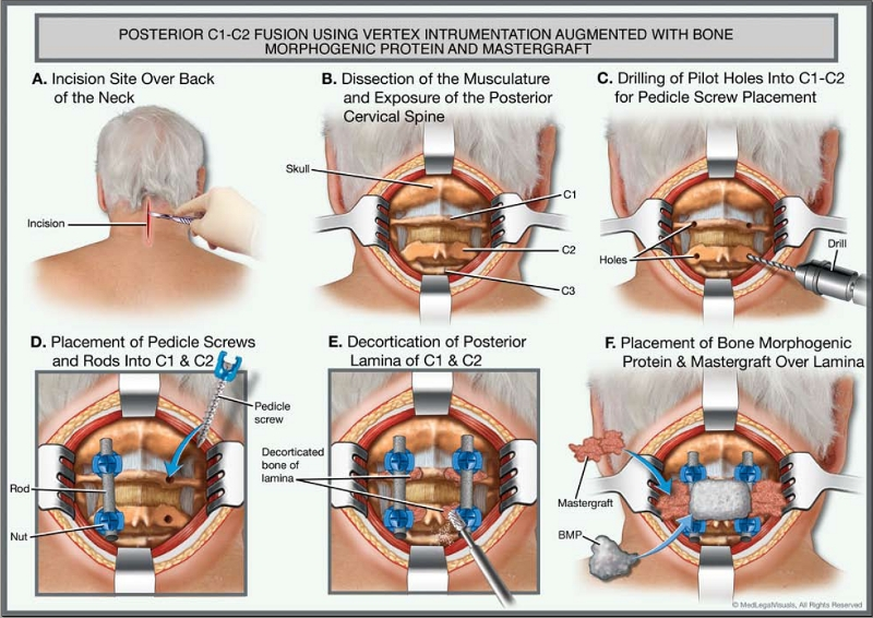 Graphic showing spinal surgery